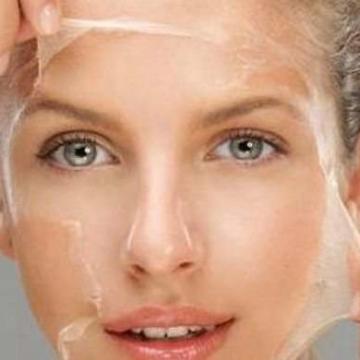 Как избавиться от сухости кожи
