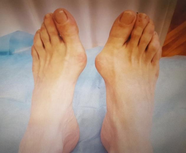 Лечение и профилактика косточек (шишек) на ногах