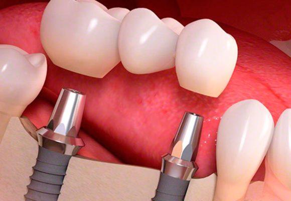 Курение и зубные имплантаты