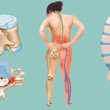 Лечение межпозвонковой грыжи